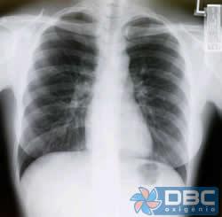 x-ray_pulmao